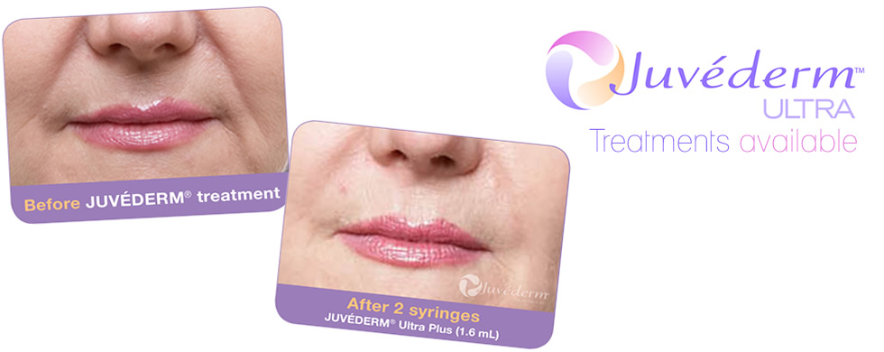 Juvederme in Solihull