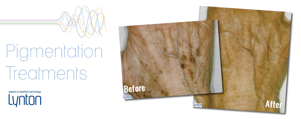 Pigmentation treatment from the Skin Therapy Centre Solihull